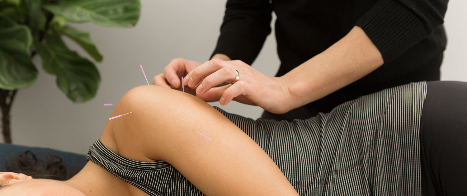 Traditional Chinese Acupuncture - Treloar Physiotherapy Clinic